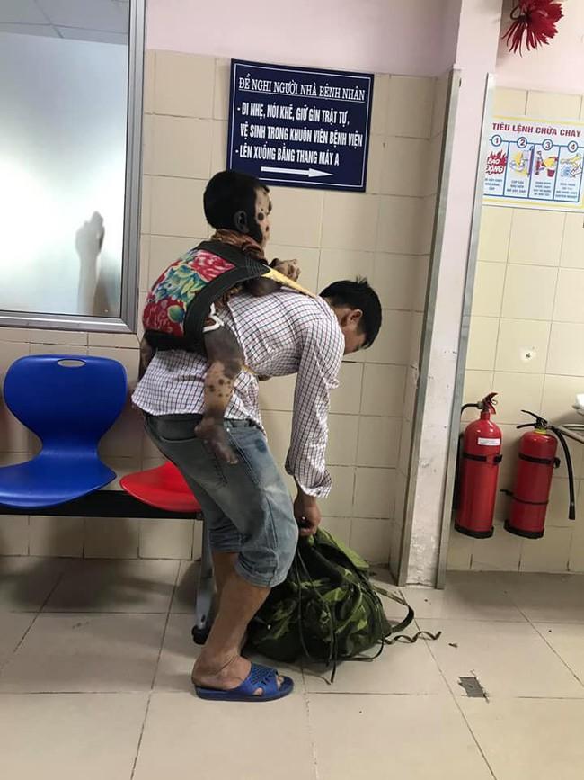 Căn bệnh hiếm gặp  khiến cậu bé Quảng Ninh có toàn bộ cơ thể từ cổ, lưng, mông, đến chân, tay đều là mảng da màu đen - Ảnh 1.