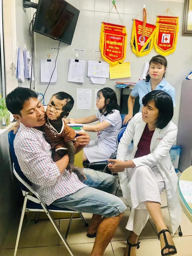 Căn bệnh hiếm gặp  khiến cậu bé Quảng Ninh có toàn bộ cơ thể từ cổ, lưng, mông, đến chân, tay đều là mảng da màu đen - Ảnh 2.