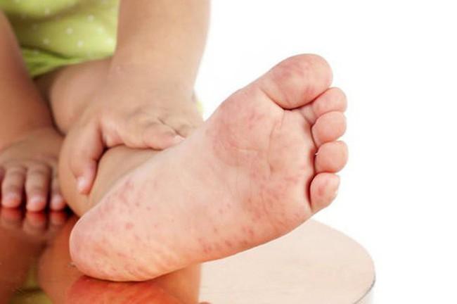 Biến chứng của bệnh tay chân miệng có thể gây tử vong, cha mẹ đừng bỏ qua những dấu hiệu cảnh báo nguy cơ biến chứng như này - Ảnh 3.