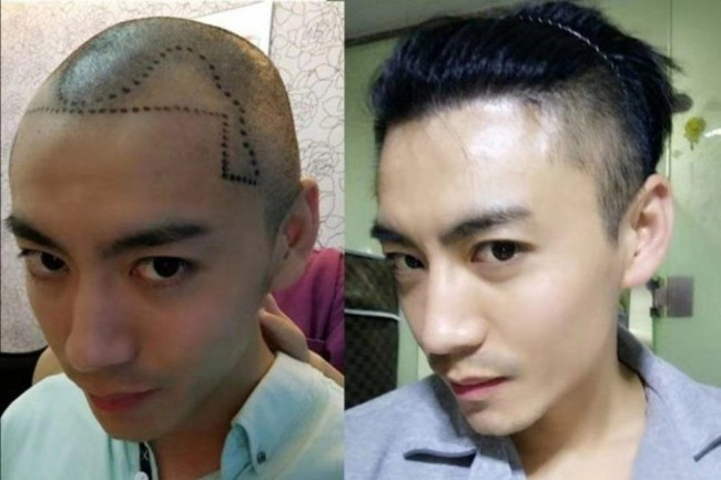 """""""Đại dịch"""" hói đầu tấn công đàn ông Trung Quốc, dịch vụ chăm sóc và cấy tóc mọc lên như nấm sau mưa - Ảnh 1."""
