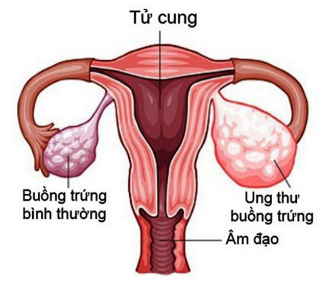 1 gia đình có 3 chị em gái ruột cùng bị u buồng trứng, bác sĩ chỉ ra nguyên nhân và việc chị em cần làm để phát hiện sớm bệnh - Ảnh 1.