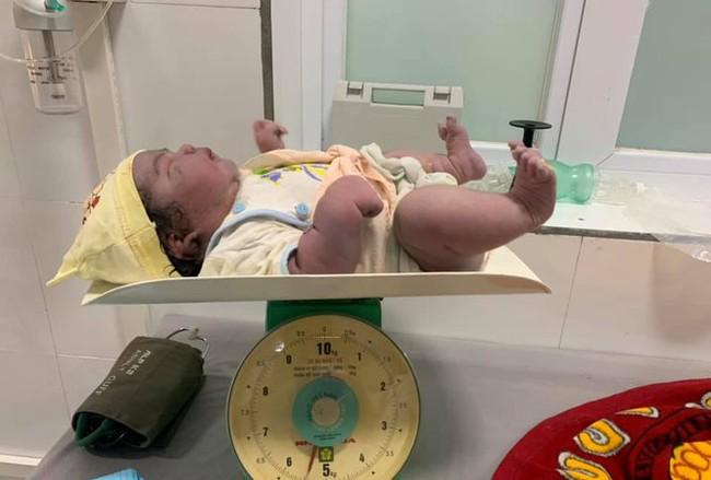 Kỳ tích sản phụ sinh thường bé gái nặng 5,5kg tại huyện miền núi Nghệ An - Ảnh 1.