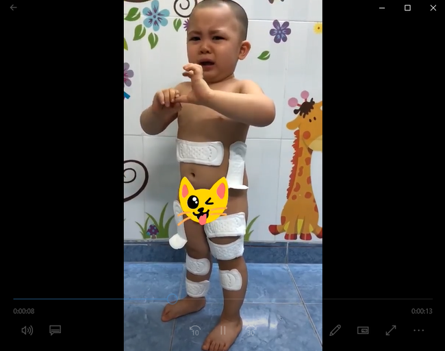 Cười chảy nước mắt với bé trai 2 tuổi lấy băng vệ sinh dán khắp người vì tưởng đó là băng dán vết thương - Ảnh 2.