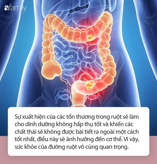 Cơ thể có 4 dấu hiệu này chứng tỏ đường ruột của bạn rất sạch - Ảnh 1.