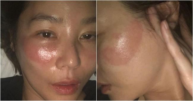 """Đắp mask quá lâu, """"Mẹ Kim Tan"""" nhận ngay cái kết đắng, làn da rát đỏ sưng tấy ai nhìn cũng xót - Ảnh 5."""