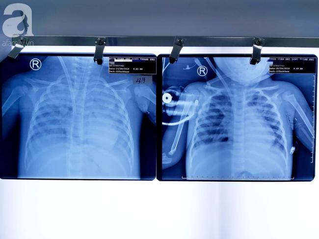 """Bác sĩ dùng phương pháp """"hồi sinh tim phổi"""" cứu bé gái 30 tháng tuổi nguy kịch vì viêm phổi cực nặng - Ảnh 2."""