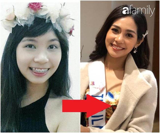 """Tân Hoa hậu Quốc tế 2019: Xinh đẹp hoàn hảo nhưng hóa ra từng phải nhờ cậy đến thủ thuật """"sửa răng"""" để luôn rạng rỡ - Ảnh 4."""