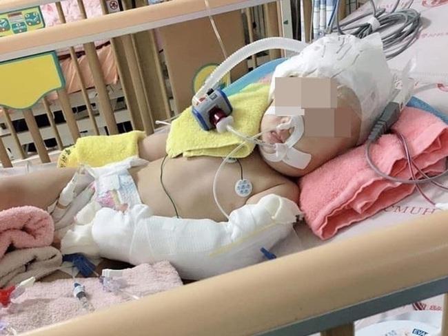 Bé gái 1 tuổi bị liệt suốt đời khi bị một bảo mẫu bạo hành vì cô bé khóc không ngừng - Ảnh 1.