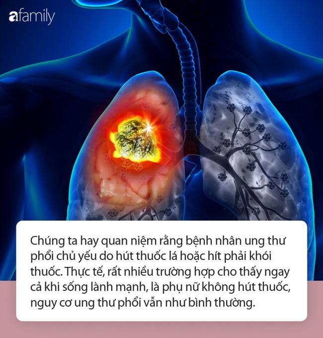 Không bao giờ hút thuốc, 3 phụ nữ sau vẫn bị ung thư phổi như thường! - Ảnh 1.