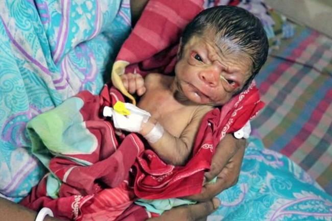 Cả ê-kíp bác sĩ đỡ đẻ choáng váng khi em bé chào đời trong hình hài của một ông lão 80 tuổi - Ảnh 4.