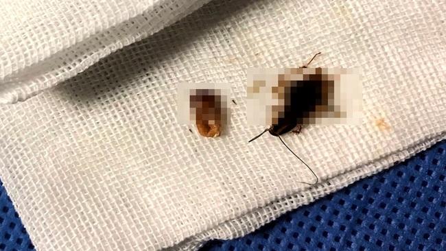 Bác sĩ phát hiện 11 con gián sống trong tai của chàng trai trẻ tuổi - Ảnh 3.