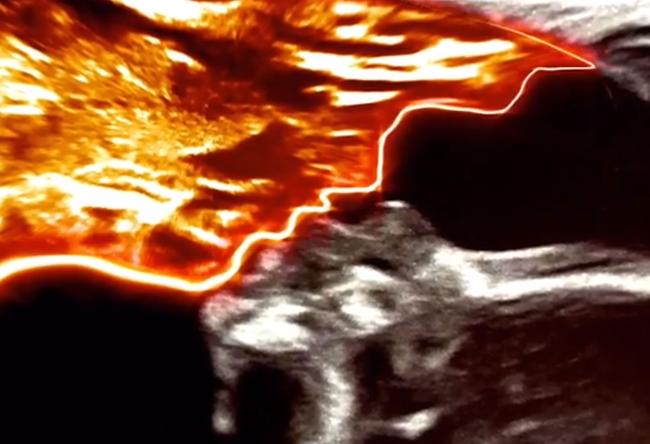 Bà mẹ choáng váng khi phát hiện ra hình ảnh người cha quá cố đang hôn con gái mình trong bức ảnh siêu âm 20 tuần của thai kỳ - Ảnh 2.