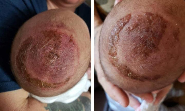 Mẹ đau thắt lòng khi con mới sinh bị thương nặng phần đầu chỉ vì bác sĩ bất chấp sử dụng cụ trợ sinh này - Ảnh 2.