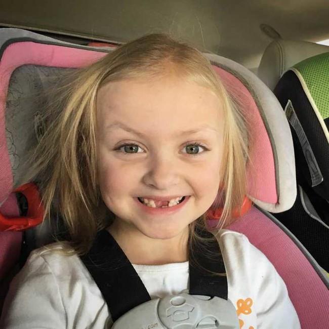 Con gái khóc lóc đòi che đi vết sẹo do ung thư, người mẹ chỉ nói một câu khiến ai nấy cũng đều cảm động - Ảnh 1.