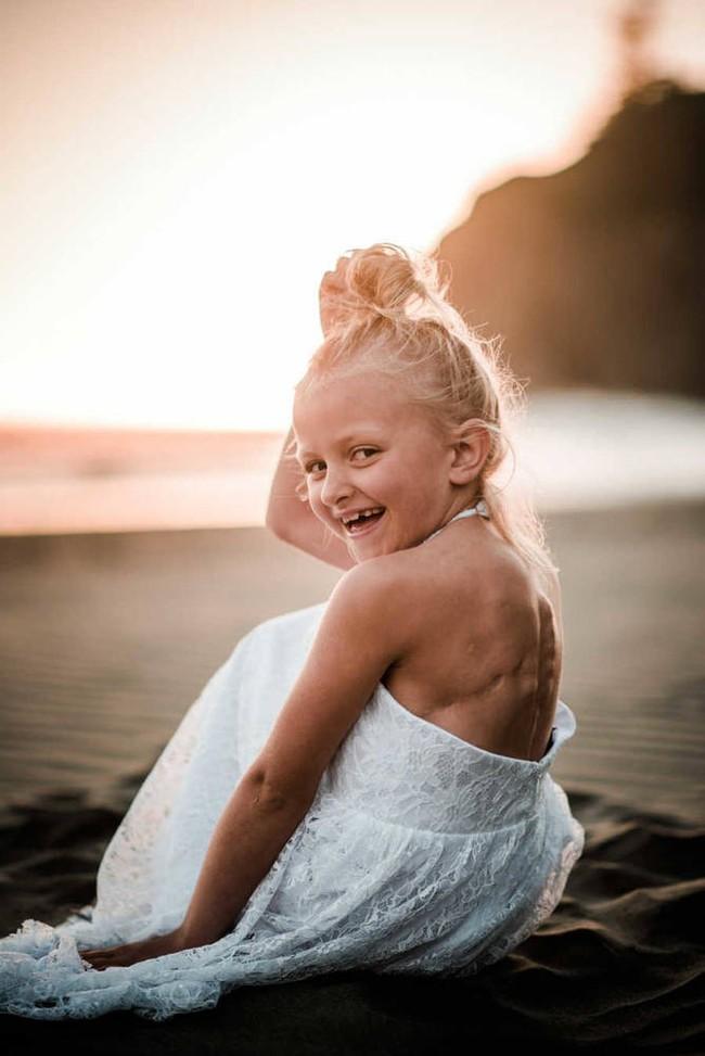 Con gái khóc lóc đòi che đi vết sẹo do ung thư, người mẹ chỉ nói một câu khiến ai nấy cũng đều cảm động - Ảnh 5.