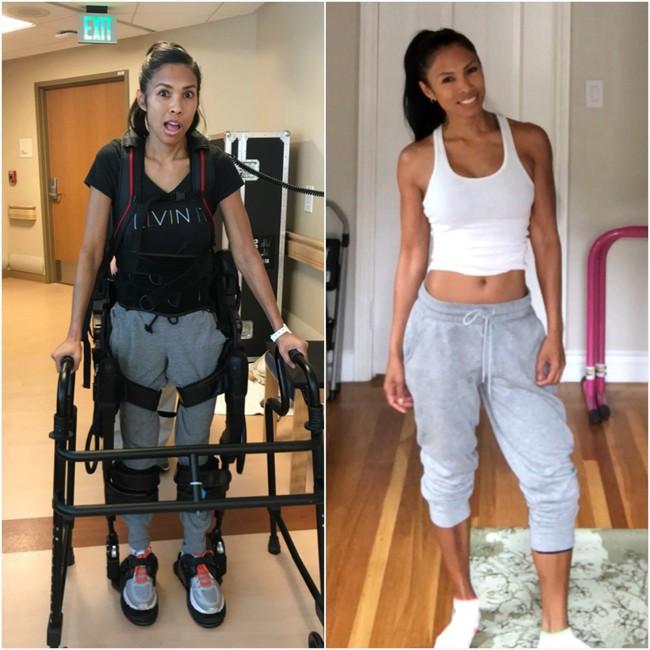 Một người phụ nữ đang khỏe mạnh bỗng dưng không thể cử động được tay, chân, mặt và ruột bởi căn bệnh đáng sợ - Ảnh 2.