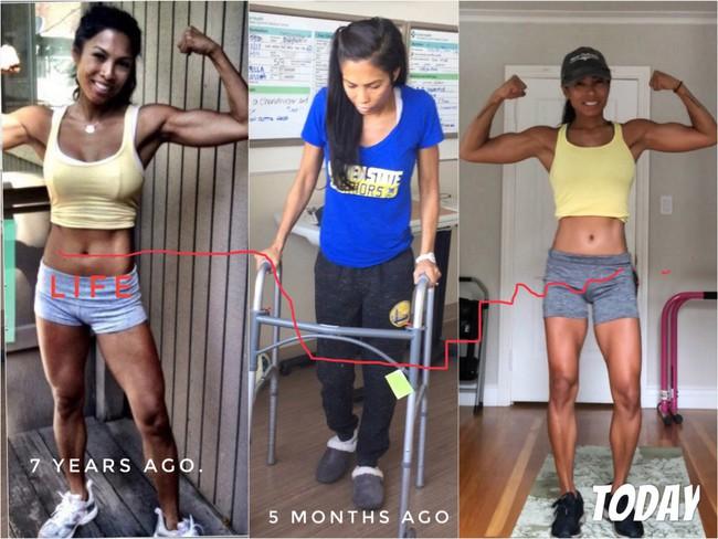 Một người phụ nữ đang khỏe mạnh bỗng dưng không thể cử động được tay, chân, mặt và ruột bởi căn bệnh đáng sợ - Ảnh 3.