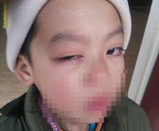 Tạm đình chỉ giáo viên bị tố lấy thước kẻ đánh vào mắt học sinh - Ảnh 1.