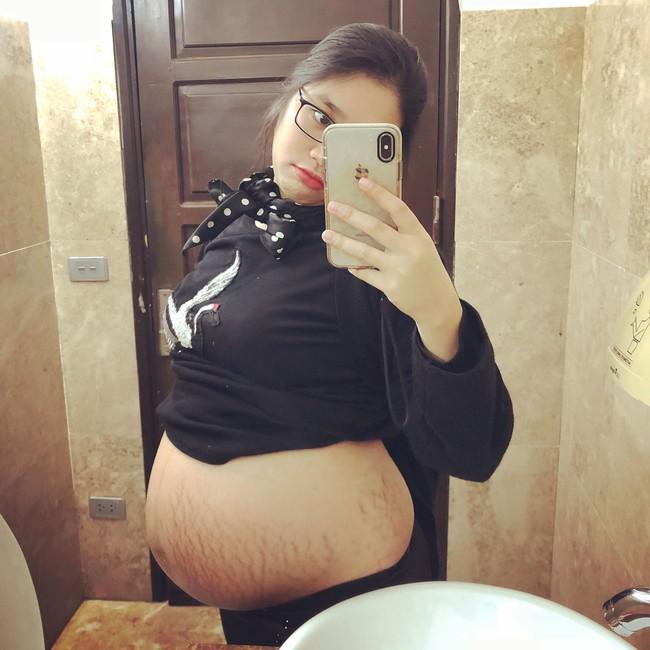 Mẹ trẻ kể hành trình sinh con gian nan, chịu đủ cả cảm giác đau đẻ, đau mổ, áp xe ngực khiến chị em đồng cảm - Ảnh 4.