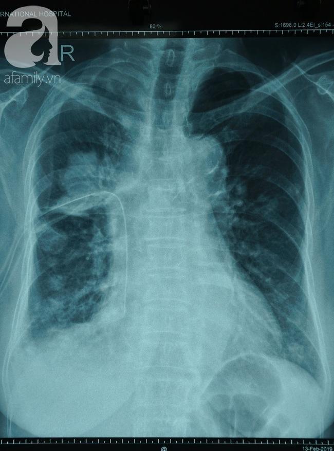 Chỉ sốt nhẹ và ho khan 2 tuần, người phụ nữ bất ngờ phát hiện mắc căn bệnh ung thư phổi - Ảnh 1.