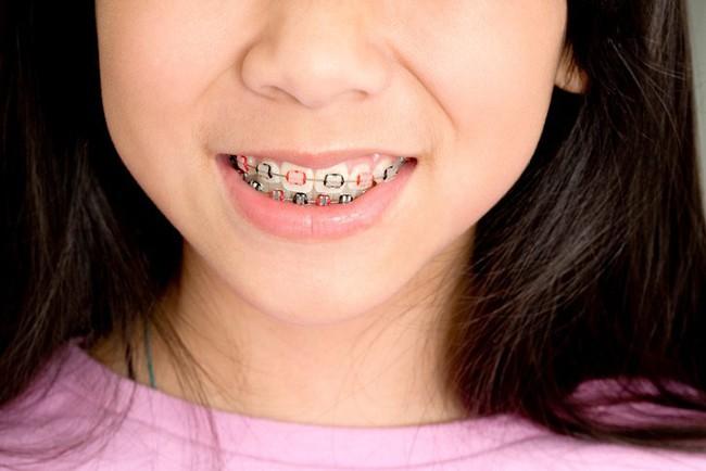 Đây là những điều cha mẹ rất nên cân nhắc trước khi quyết định cho con đi niềng răng - Ảnh 2.