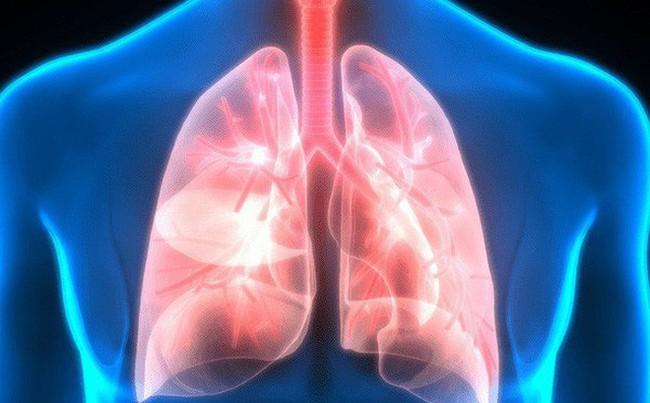 Nguy hiểm khi bụi mịn đi thẳng vào phổi, phải làm gì để làm sạch phổi ngay hôm nay? - Ảnh 3.
