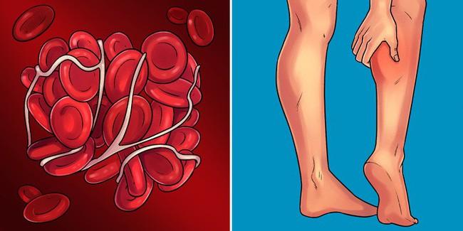 Dấu hiệu cảnh báo sớm có thể giúp bạn kịp thời xác định 10 bệnh nghiêm trọng - Ảnh 10.