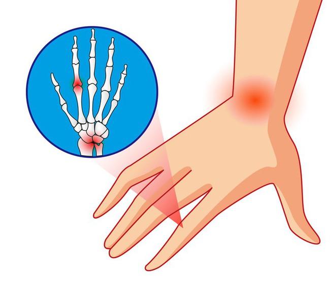 Dấu hiệu cảnh báo sớm có thể giúp bạn kịp thời xác định 10 bệnh nghiêm trọng - Ảnh 3.