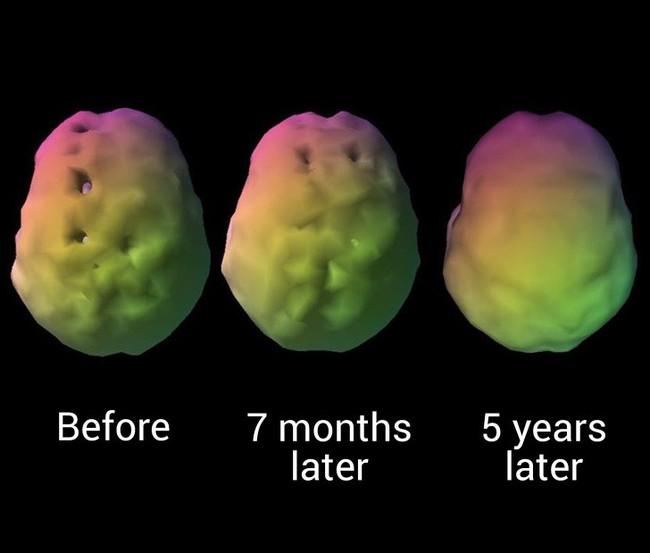Một nhà thần kinh học đã có cách làm trẻ hóa não bộ của mình và đây chính xác là những gì ông muốn mọi người làm theo - Ảnh 4.