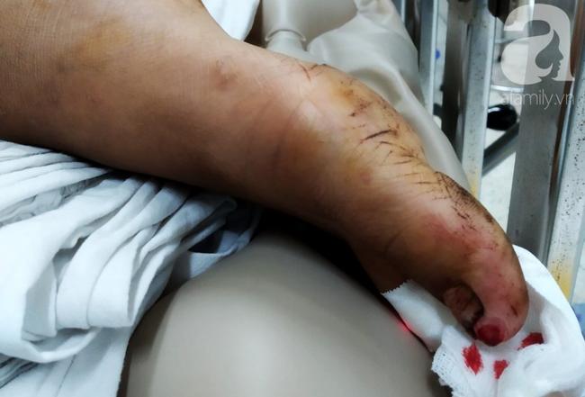 Bác sĩ vội vã trở lại viện, xuyên màn đêm cứu chân bé gái 13 tuổi trong ngày Thầy thuốc Việt Nam - Ảnh 6.