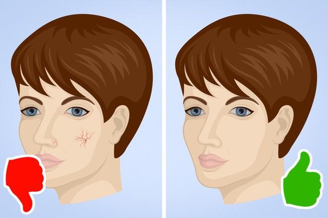 8 dấu hiệu bất ngờ của bệnh gan cho thấy bạn cần đến bác sĩ càng sớm càng tốt - Ảnh 6.