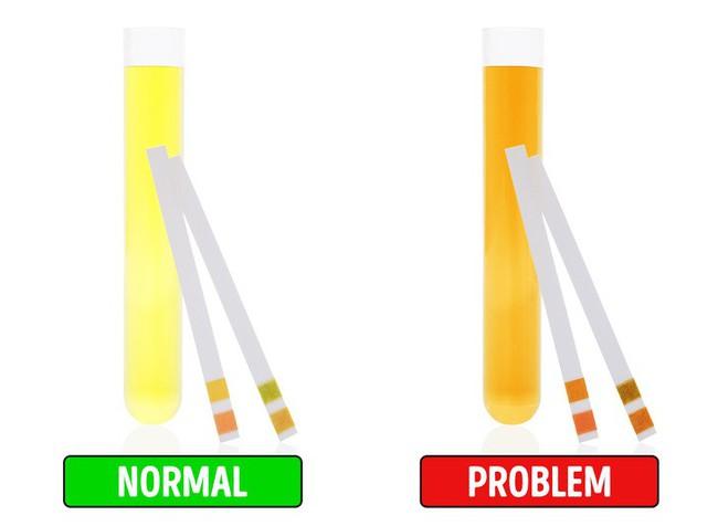 8 dấu hiệu bất ngờ của bệnh gan cho thấy bạn cần đến bác sĩ càng sớm càng tốt - Ảnh 8.