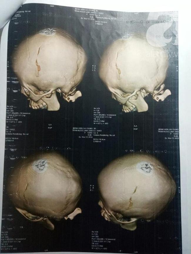 Nữ sinh lớp 9 tố bị vợ 2 của bố đánh chấn thương phải lưu ban do nghỉ quá số ngày quy định - Ảnh 4.