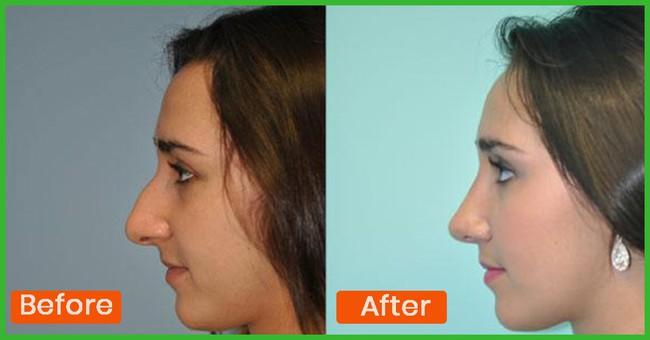Những bài tập giúp mũi thon gọn không cần phẫu thuật thẩm mỹ - Ảnh 3.