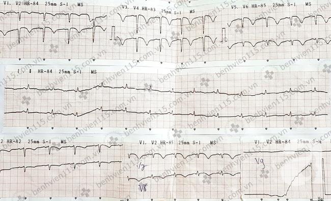 Nữ bệnh nhân bị nhồi máu cơ tim cấp do ong đốt và khuyến cáo của bác sĩ cho người trẻ tuổi - Ảnh 4.