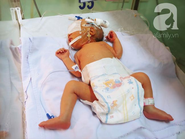 Mổ thành công cho bé gái sơ sinh mang khối bướu khổng lồ vùng cùng cụt nặng hơn cả trọng lượng cơ thể - Ảnh 3.