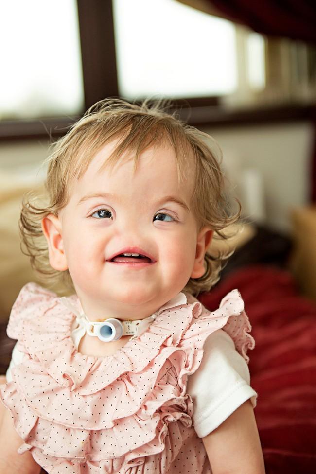 Ca sinh nở hiếm gặp: Em bé chào đời hoàn toàn không có mũi khiến bác sĩ cũng kinh ngạc vì chưa gặp bao giờ - Ảnh 4.