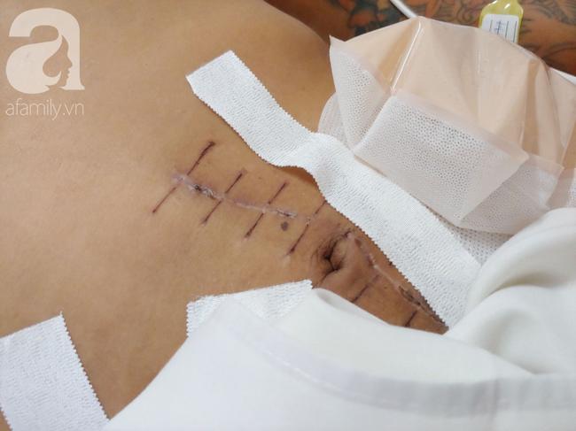Mẹ vui mừng khi con trai bị vỡ nát đại tràng được bác sĩ cứu sống thần kì, dù liên tục đòi chuyển viện - Ảnh 2.