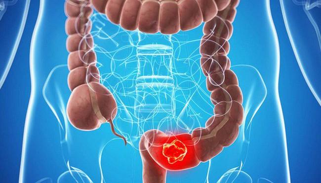 Các triệu chứng ung thư đại trực tràng rất dễ bị bỏ qua - Ảnh 4.