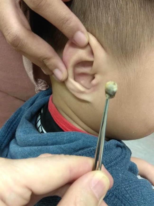 Bác sĩ hé lộ nguyên nhân khiến bé 3 tuổi bỗng nhiên bất thính lực - Ảnh 2.