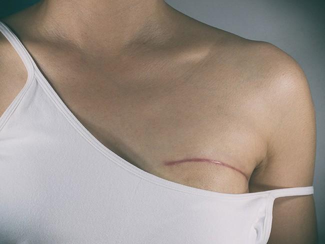 Bác sĩ chỉ ra những dấu hiệu trên cơ thể cảnh báo nguy cơ ung thư vú mà chị em nào cũng cần cảnh giác - Ảnh 2.