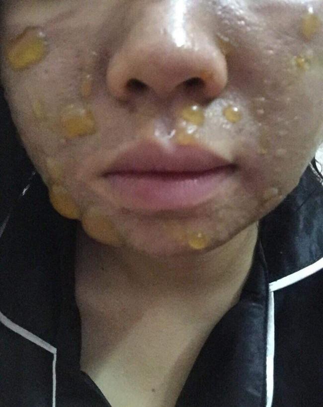 Kinh hãi hình ảnh cô gái bị nổi bóng nước khắp mặt vì làm đẹp: Chuyên gia cảnh báo điều quan trọng trước khi peel da - Ảnh 2.