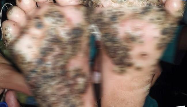 Bị bọ chét đào hang đẻ trứng trên da, bàn chân bé gái 10 tuổi biến dạng kinh dị - Ảnh 1.