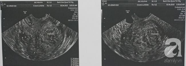 Người phụ nữ rong huyết nặng, phải cắt tử cung hoàn toàn vì căn bệnh 40% phụ nữ trong tuổi sinh sản mắc phải - Ảnh 1.