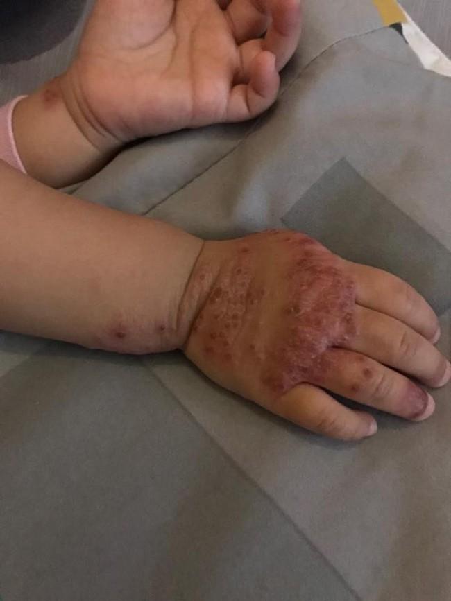 Ròng rã theo con bị viêm da cơ địa, gãi trày da tróc vảy cũng không hết ngứa, mẹ Hà Nội đúc rút loạt kinh nghiệm xương máu dành cho hội chị em nuôi con nhỏ - Ảnh 4.