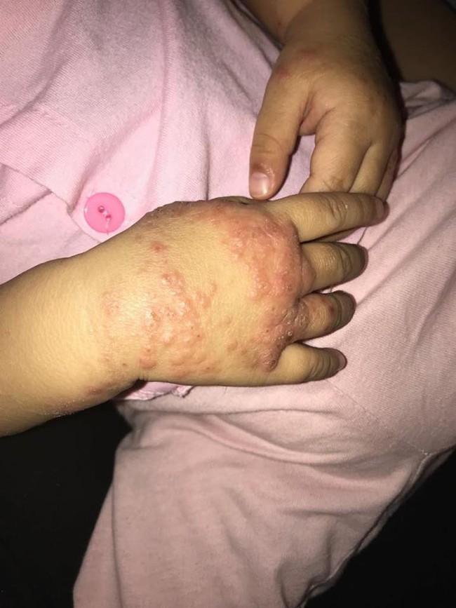 Ròng rã theo con bị viêm da cơ địa, gãi trày da tróc vảy cũng không hết ngứa, mẹ Hà Nội đúc rút loạt kinh nghiệm xương máu dành cho hội chị em nuôi con nhỏ - Ảnh 5.