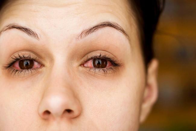 Đau mắt đỏ: Bệnh dễ gặp khi thời tiết sắp chuyển sang nóng bức - Ảnh 3.