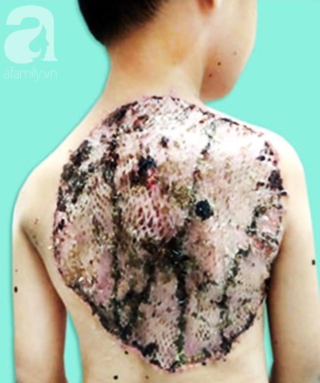 Bé trai 7 tuổi ở Vĩnh Long mang khối u khổng lồ hiếm gặp vùng lưng như chiếc mai rùa - Ảnh 2.
