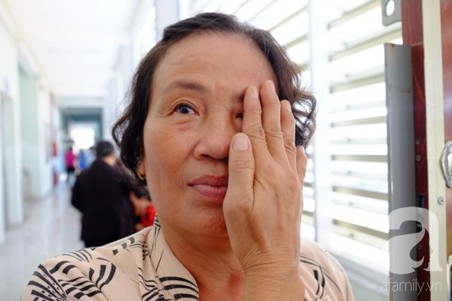 Đau mắt đỏ và những căn bệnh về mắt lây lan rất nhanh trong mùa nóng mà ai cũng cần cảnh giác - Ảnh 5.