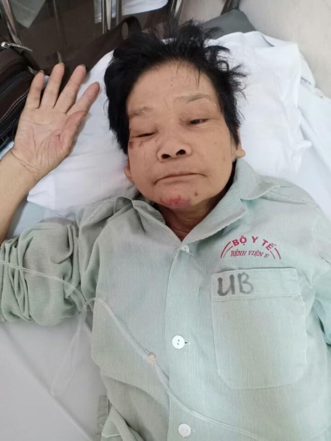 Hà Nội: Tìm người thân cho một phụ nữ lớn tuổi, mất trí nhớ tại bệnh viện E - Ảnh 1.